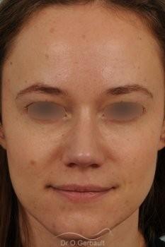 Nez très projeté sur peau épaisse vue de face apres