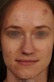 Nez très projeté sur peau épaisse vue de face avant
