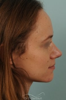 Nez très projeté sur peau épaisse vue de profil apres