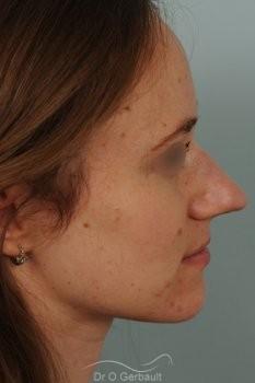 Nez très projeté sur peau épaisse vue de profil avant