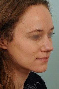 Nez très projeté sur peau épaisse vue de quart apres