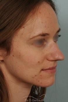 Nez très projeté sur peau épaisse vue de quart avant