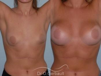 Asymétrie mammaire vue de face avant-apres
