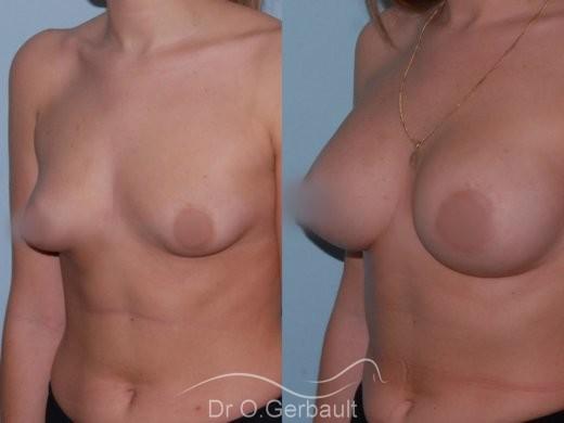 Asymétrie mammaire vue de quart avant-apres