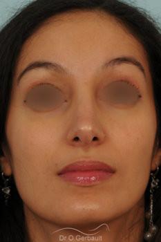 Rhinoplastie primaire sur peau épaisse de type maghrébine vue de face apres