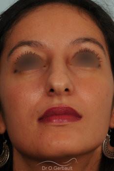 Rhinoplastie primaire sur peau épaisse de type maghrébine vue de face avant