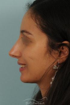 Rhinoplastie primaire sur peau épaisse de type maghrébine vue de profil apres