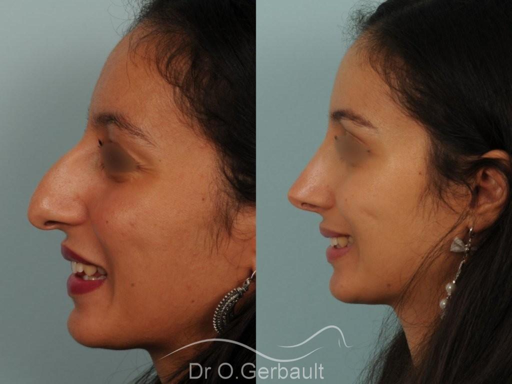 Rhinoplastie primaire sur peau épaisse de type maghrébine vue de profil avant-apres
