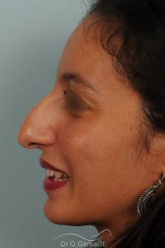 Rhinoplastie primaire sur peau épaisse de type maghrébine vue de profil avant