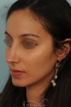 Rhinoplastie primaire sur peau épaisse de type maghrébine vue de quart apres