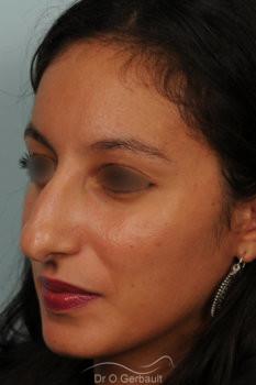 Rhinoplastie primaire sur peau épaisse de type maghrébine vue de quart avant