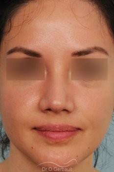 Pointe de nez large et tombante sur peau épaisse vue de face apres