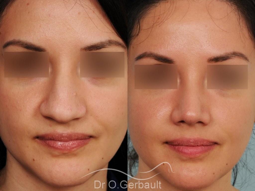 Pointe de nez large et tombante sur peau épaisse vue de face avant-apres