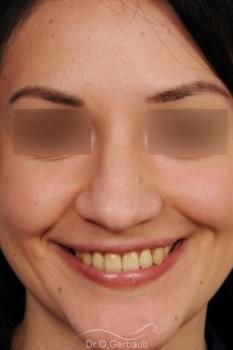 Pointe de nez large et tombante sur peau épaisse vue de face avant