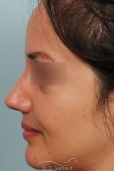 Pointe de nez large et tombante sur peau épaisse vue de profil apres