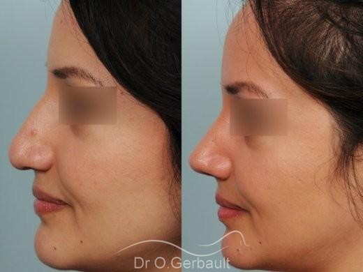 Pointe de nez large et tombante sur peau épaisse vue de profil avant-apres