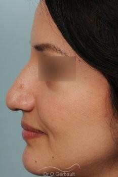 Pointe de nez large et tombante sur peau épaisse vue de profil avant