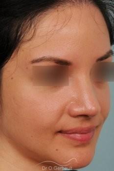 Pointe de nez large et tombante sur peau épaisse vue de quart apres