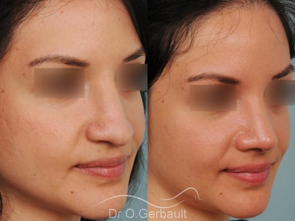 Pointe de nez large et tombante sur peau épaisse vue de quart avant-apres