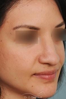 Pointe de nez large et tombante sur peau épaisse vue de quart avant