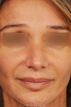 Rhinoplastie structurelle d'affinement sur peau mature vue de face apres