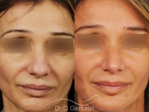 Rhinoplastie structurelle d'affinement sur peau mature vue de face avant-apres