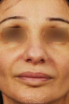 Rhinoplastie structurelle d'affinement sur peau mature vue de face avant