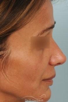 Rhinoplastie structurelle d'affinement sur peau mature vue de profil apres