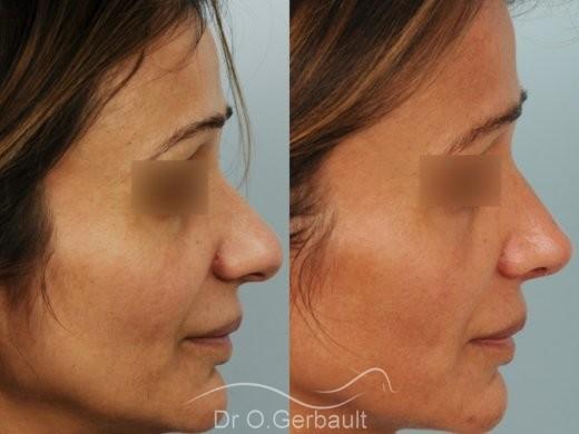 Rhinoplastie structurelle d'affinement sur peau mature vue de profil avant-apres