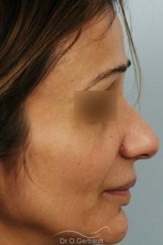 Rhinoplastie structurelle d'affinement sur peau mature vue de profil avant