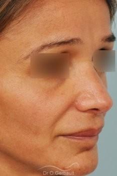 Rhinoplastie structurelle d'affinement sur peau mature vue de quart apres