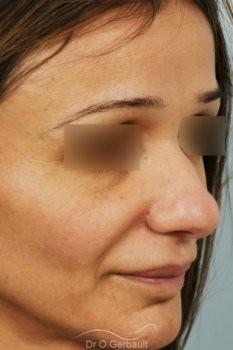 Rhinoplastie structurelle d'affinement sur peau mature vue de quart avant