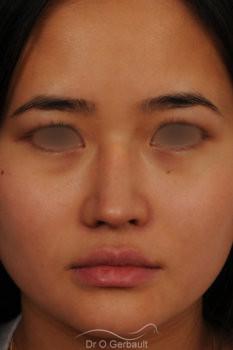 Rhinoplastie chez une jeune femme asiatique vue de face apres