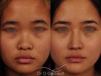 Rhinoplastie chez une jeune femme asiatique vue de face avant-apres