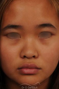 Rhinoplastie chez une jeune femme asiatique vue de face avant