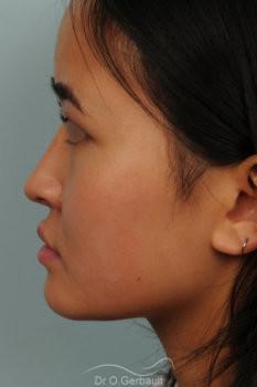 Rhinoplastie chez une jeune femme asiatique vue de profil apres