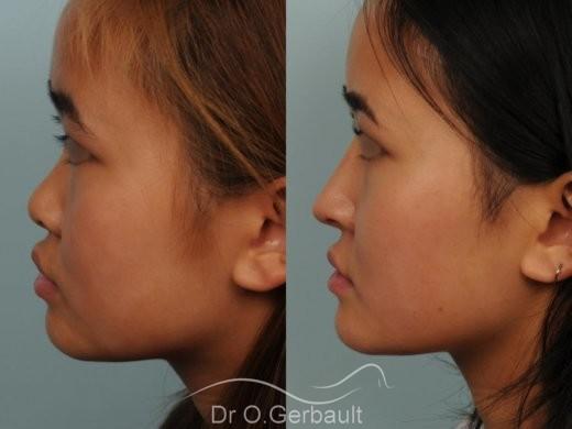 Rhinoplastie chez une jeune femme asiatique vue de profil avant-apres