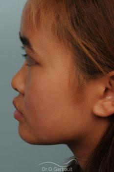 Rhinoplastie chez une jeune femme asiatique vue de profil avant