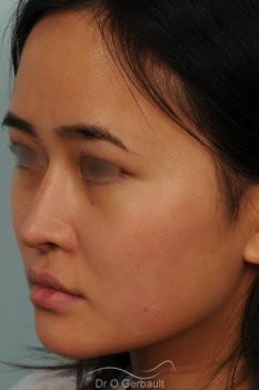 Rhinoplastie chez une jeune femme asiatique vue de quart apres