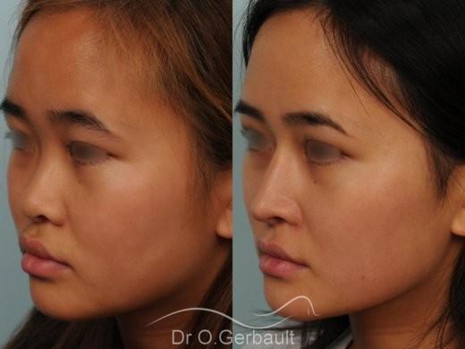 Rhinoplastie chez une jeune femme asiatique vue de quart avant-apres