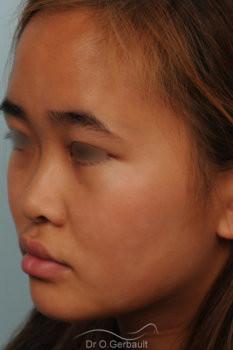 Rhinoplastie chez une jeune femme asiatique vue de quart avant