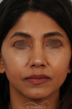 Rhinoplastie primaire sur peau épaisse de type indienne vue de face apres
