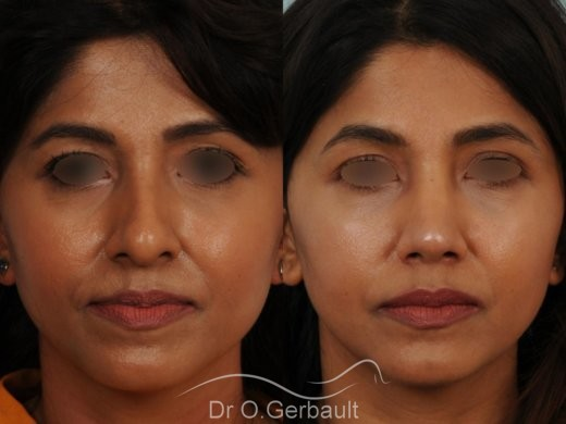 Rhinoplastie primaire sur peau épaisse de type indienne vue de face avant-apres