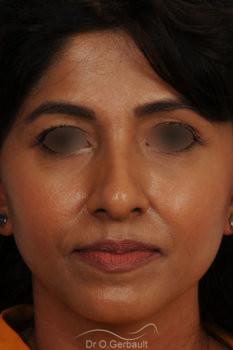 Rhinoplastie primaire sur peau épaisse de type indienne vue de face avant