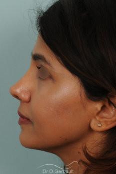 Rhinoplastie primaire sur peau épaisse de type indienne vue de profil apres