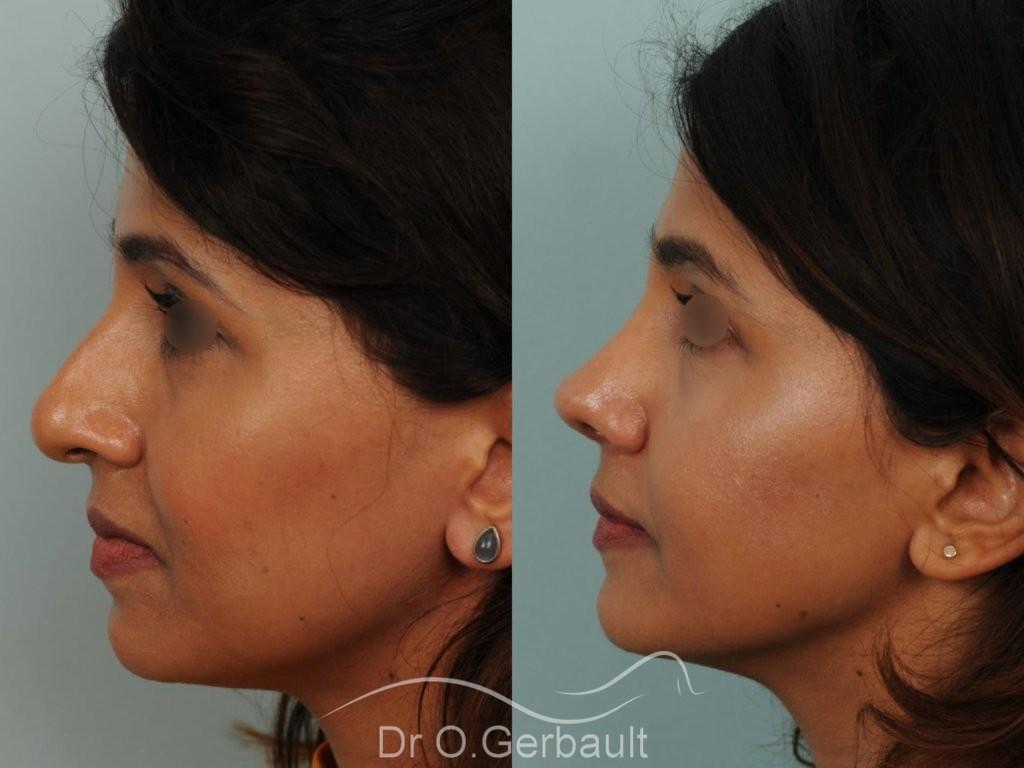 Rhinoplastie primaire sur peau épaisse de type indienne vue de profil avant-apres