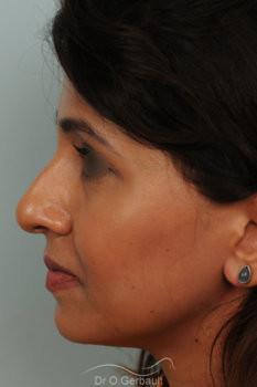 Rhinoplastie primaire sur peau épaisse de type indienne vue de profil avant