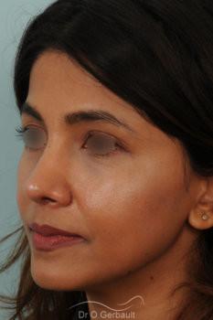 Rhinoplastie primaire sur peau épaisse de type indienne vue de quart apres