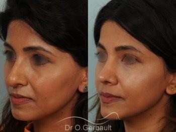 Rhinoplastie primaire sur peau épaisse de type indienne vue de quart avant-apres