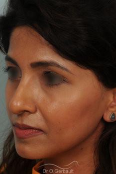 Rhinoplastie primaire sur peau épaisse de type indienne vue de quart avant